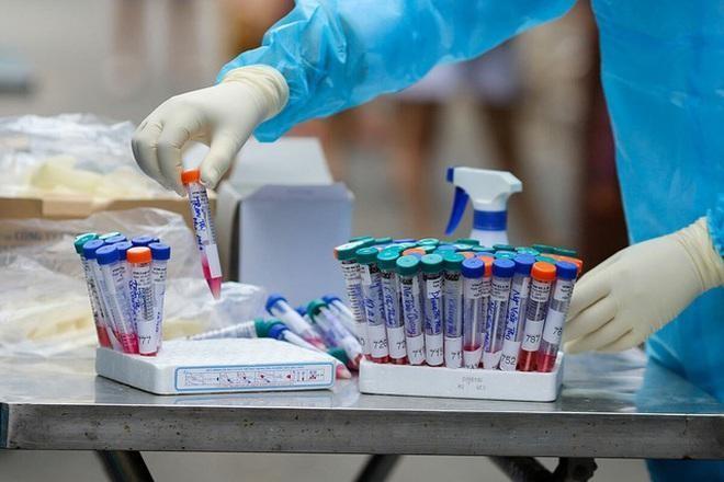 Ngày 9/5, bệnh nhân tiếp tục được làm xét nghiệm SARS-CoV-2 và cho kết quả dương tính.